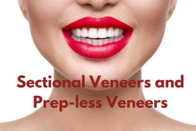 Sectional Veneers and Prep-less Veneers
