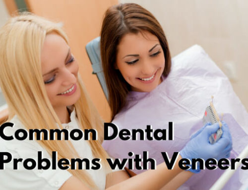 Common Dental Problems with Veneers