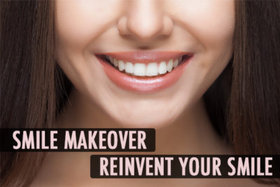 Any cosmetic dentistry procedure that is performed with the aim of enhancing your smile or appearance of your teeth is known as smile makeover.