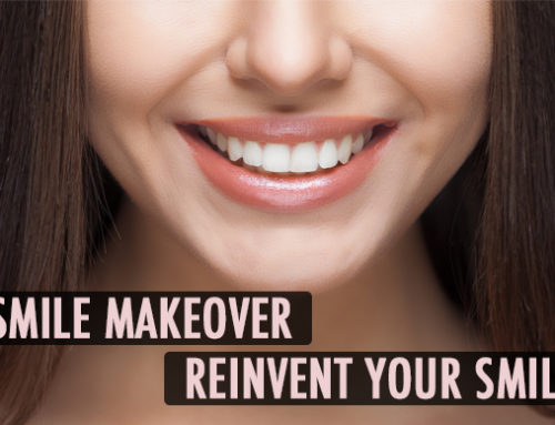 Smile Makeover: Reinvent Your Smile