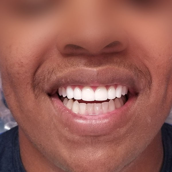Preplesss veneers plus 2 full bondings
